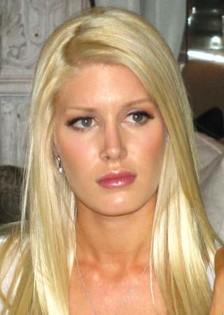 heidi montag plastic surgery 2010. images Heidi Montag plastic
